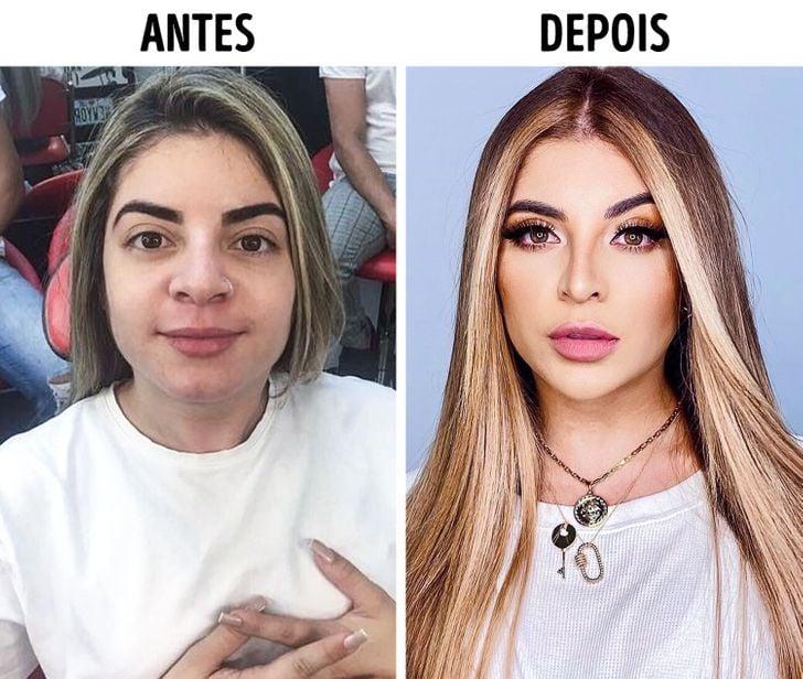 Confira o Antes e Depois das cirurgias plásticas de 15 famosas